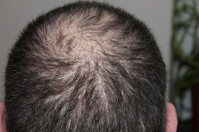 A Greffe de cheveux en Hongrie leírása pontokban